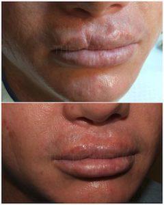 Linda Dunn Carter - The DC Method - Surgical Scars - Lips