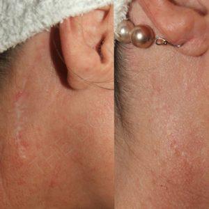 Linda Dunn Carter - The DC Method - Surgical Scars - Ears 2
