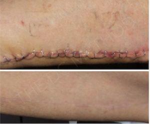 Linda Dunn Carter - The DC Method - Surgical Scars