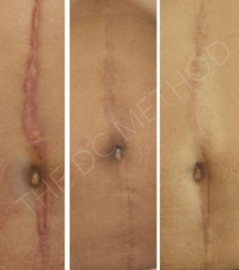 Linda Dunn Carter - The DC Method - Surgical Scars - Belly Area