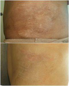 Linda Dunn Carter - The DC Method - Surgical Scars Body