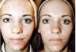 Linda Dunn Carter - The DC Method - Acne Scars - Face
