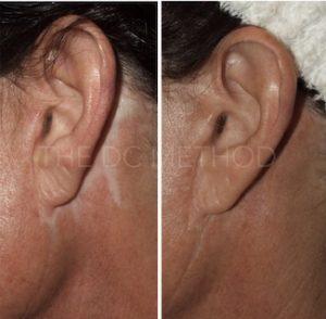 Linda Dunn Carter - The DC Method - Camouflaged Scars - Ears