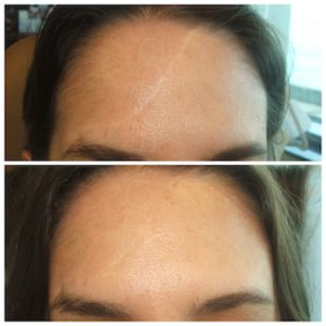 Linda Dunn Carter - The DC Method - Camouflaged Scars - Forehead