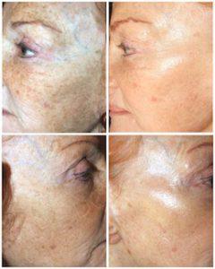 Linda Dunn Carter - The DC Method - Hyperpigmentation - Face