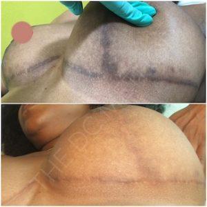Linda Dunn Carter - The DC Method - Hyperpigmentation - Lower Breast