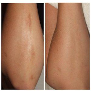 Linda Dunn Carter - The DC Method - Hyperpigmentation - Elbow Arms