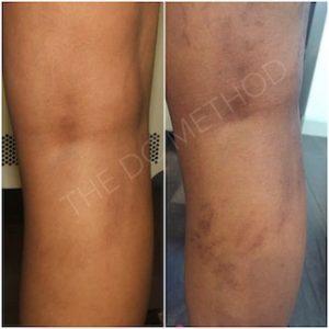 Linda Dunn Carter - The DC Method - Hyperpigmentation - Legs 2