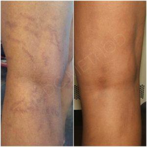 Linda Dunn Carter - The DC Method - Hyperpigmentation - Legs