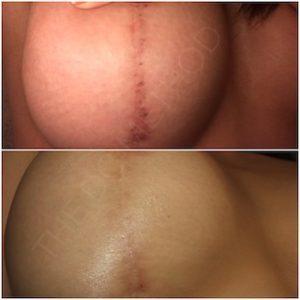 Linda Dunn Carter - The DC Method - Hyperpigmentation - Breast