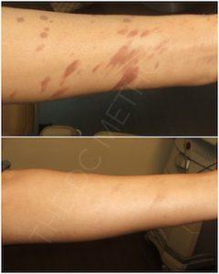 Linda Dunn Carter - The DC Method - Burn Scars - Arms