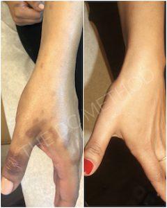 Linda Dunn Carter - The DC Method - Burn Scars - Hands