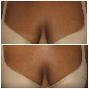 Linda Dunn Carter - The DC Method - Stretch Marks - Breast